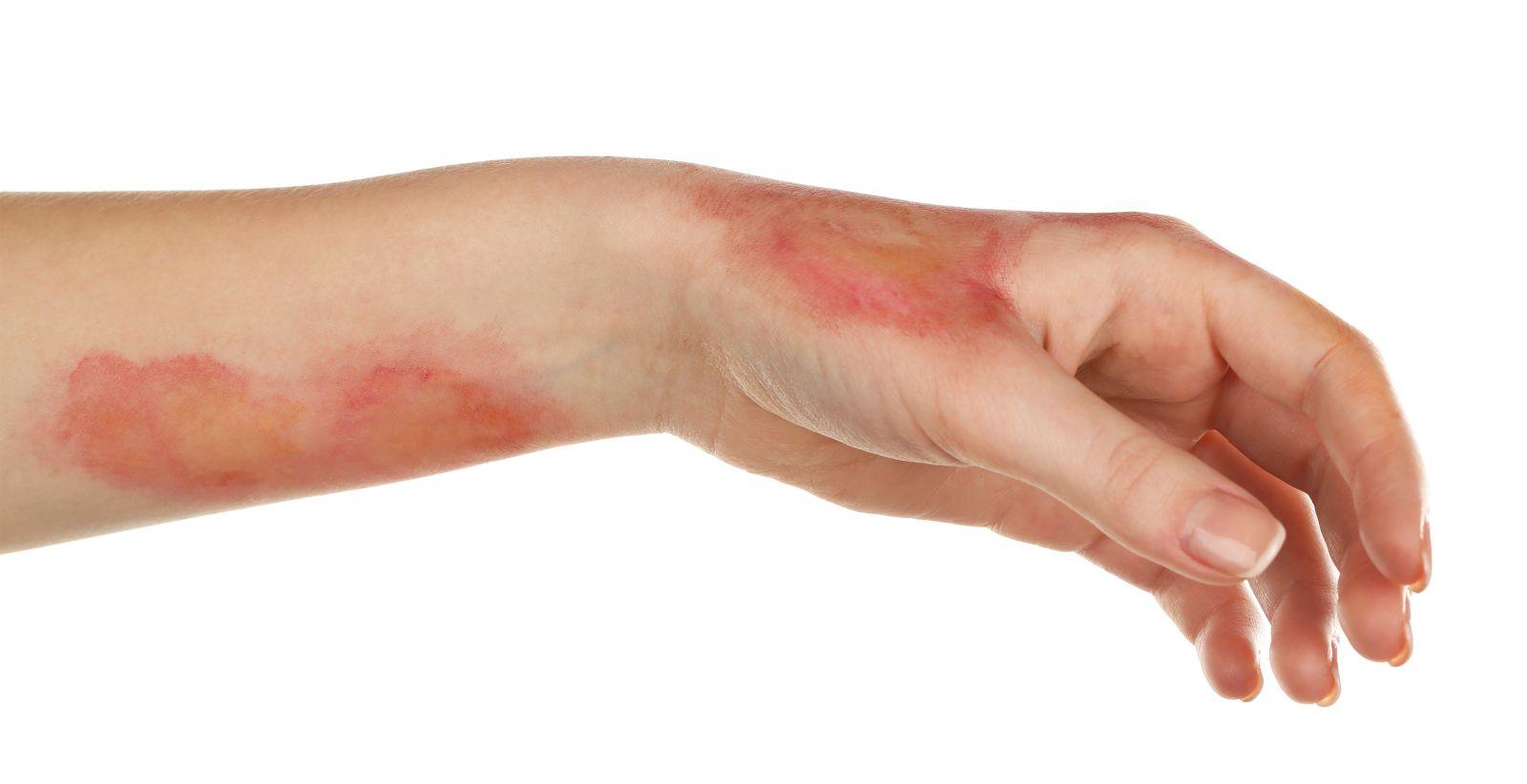 Стволовые клетки можно использовать для лечения ожогов